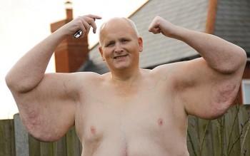 hombre ex gordo piel 2