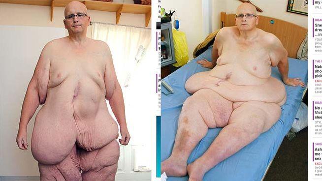 hombre ex gordo piel 3