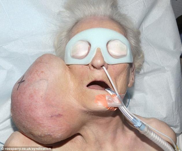 Photo of Vivió 20 años con un tumor