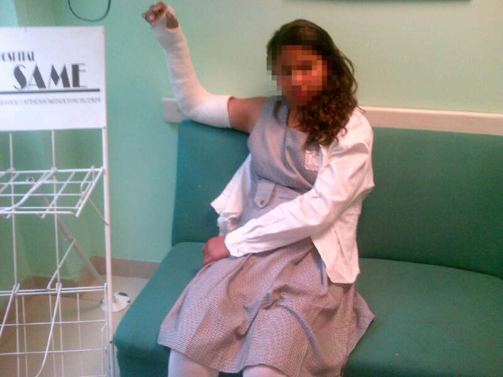 Photo of El castigo por olvidar su libreta le causa una fractura a chavita