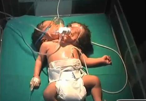 Photo of Video: Nace bebé de dos cabezas en La India