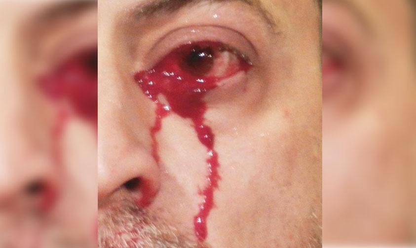 """Photo of OMG! Un Hombre Sorprendió A Médicos Al """"Llorar"""" Sangre"""