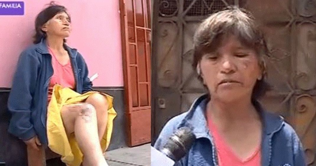 Photo of Doña Enfurece Y Avienta Agua Hirviendo A Su Vecina En El Cuerpo