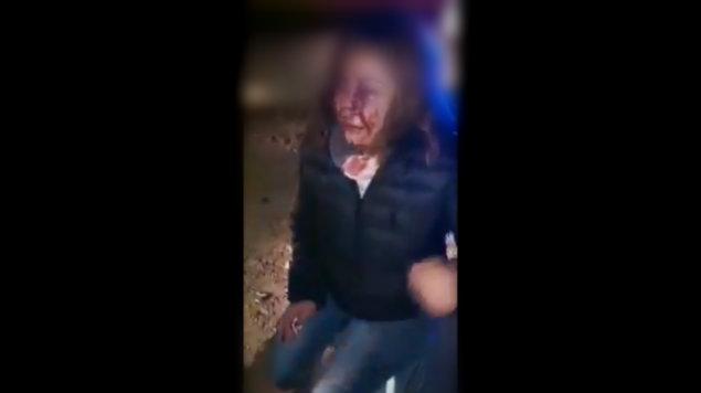 Photo of #Vídeo Mujer Brutalmente Golpeada Cuenta Cómo Escapó De Violador