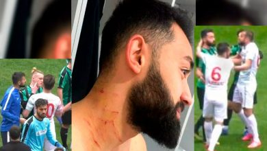 Photo of #Video Futbolista Hiere A Rivales Con Navaja Que Metió Escondida Al Campo