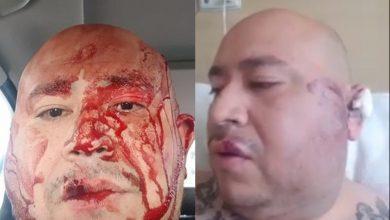 Photo of Cantar Narcocorridos No Da Derecho A Que Me Traten De Matar: Stacks