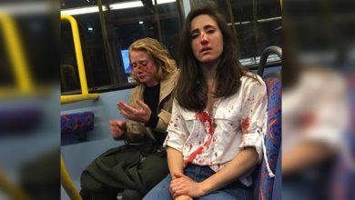 Photo of #DeShock Por Negarse A Besarse Pareja De Chicas Son Brutalmente Golpeadas Por 3 Sujetos