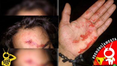 Photo of #Denúnciamesta Chofer de combi se brincó tope, me abrí la frente con tubo; me dicen mentiroso
