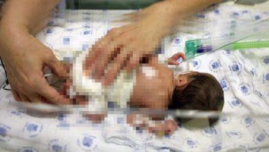 Photo of Muere Bebé De Desnutrición Por Dieta Vegana Que Le Dieron Sus Padres