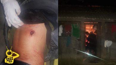 Photo of #Michoacán Hieren A Chavo Con Un Machete En Zitácuaro