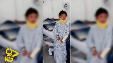 Photo of Pasa En Michoacán: Niña Sufre Bullying, Compañeras Le Fracturan Las Muñecas