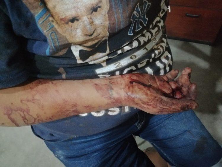 #Morelia Claudia Raquél G. G., fue severamente golpeada por su ex pareja sentimental