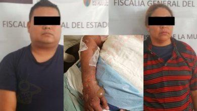 Photo of Pasa En México: Polis Queman A Su Compañera Por Ser Lesbiana