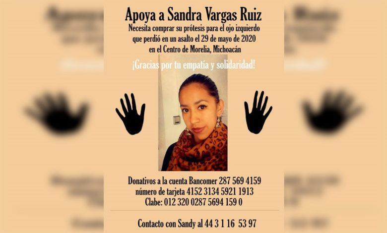 Piden Apoyo Para Madre Soltera Moreliana Que Perdió Ojo Tras Asalto