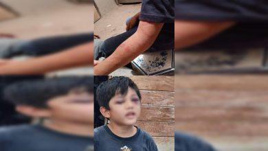Photo of Pasa En México: Padrastro Golpea Brutalmente A Niño Porque No Podía Leer