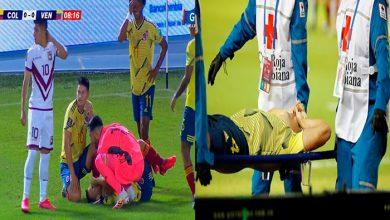 Photo of #Video Futbolista Se Parte El Pie En Pleno Partido
